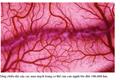 Mạch máu xấu – Nguyên nhân của bệnh tật và sự suy giảm tuổi thọ