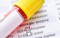 Các yếu tố ảnh hưởng đến khả năng sinh alpha-amylase chịu nhiệt của chủng Bacillus SPP.